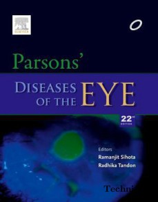 Parsons Diseases of the Eye(Paperback)